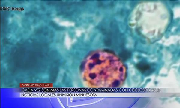 ciclosporiasis
